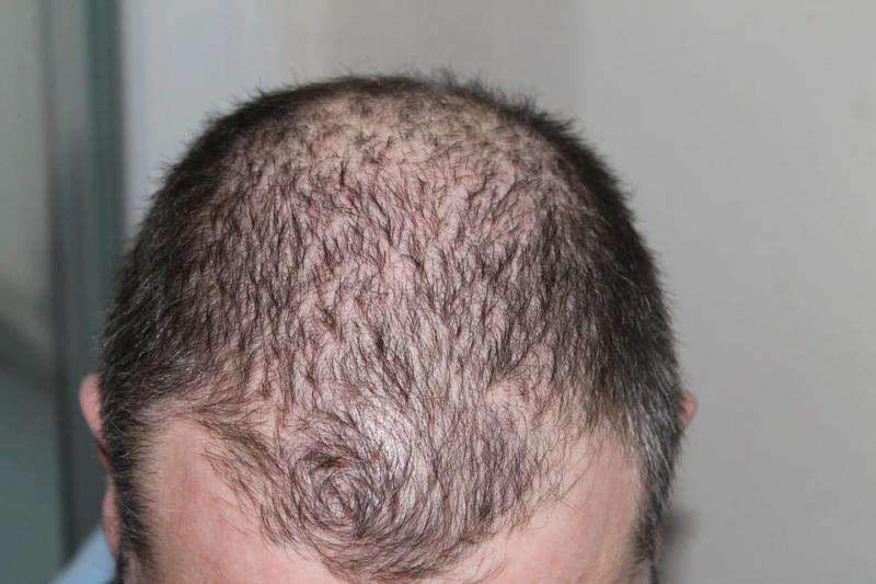 hair loss issue